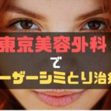 東京美容外科でシミ取り